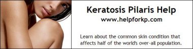 Keratosis Pilaris Help (Bumps on arms) - Learn about the common skin condition that affects half of the world's over-all population. HelpForKP.com - www.helpforkp.com